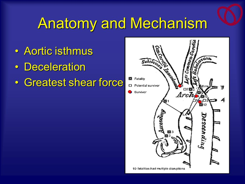 Anatomy and Mechanism Aortic isthmus Deceleration Greatest shear force