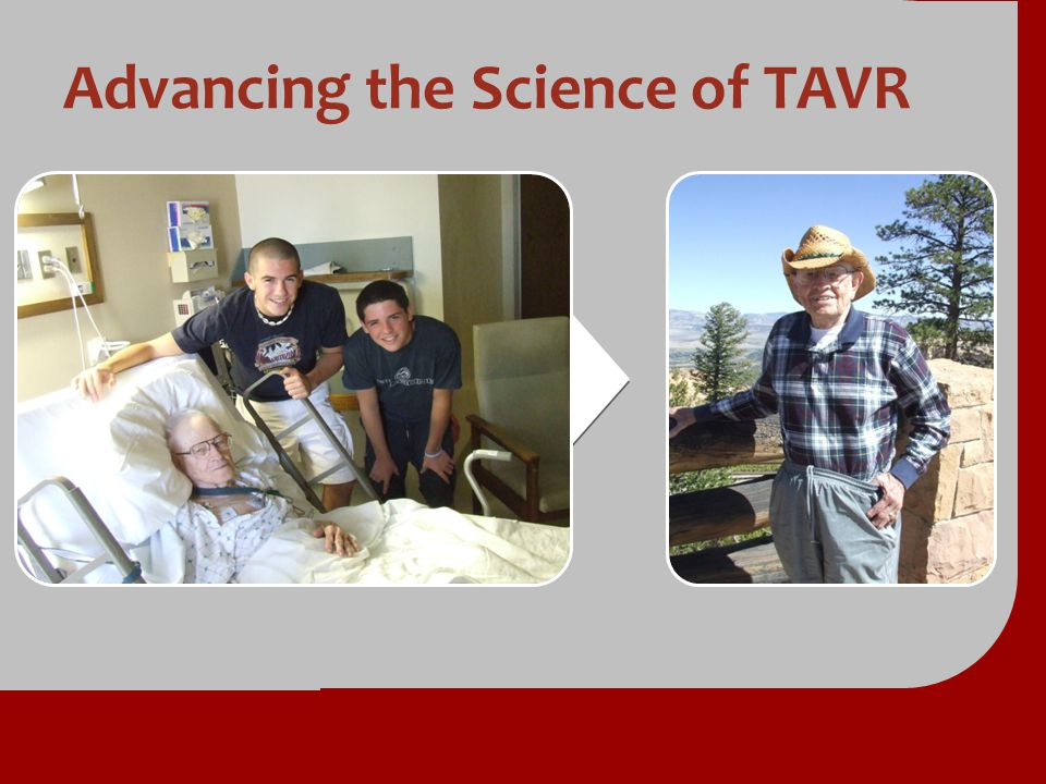Advancing the Science of TAVR