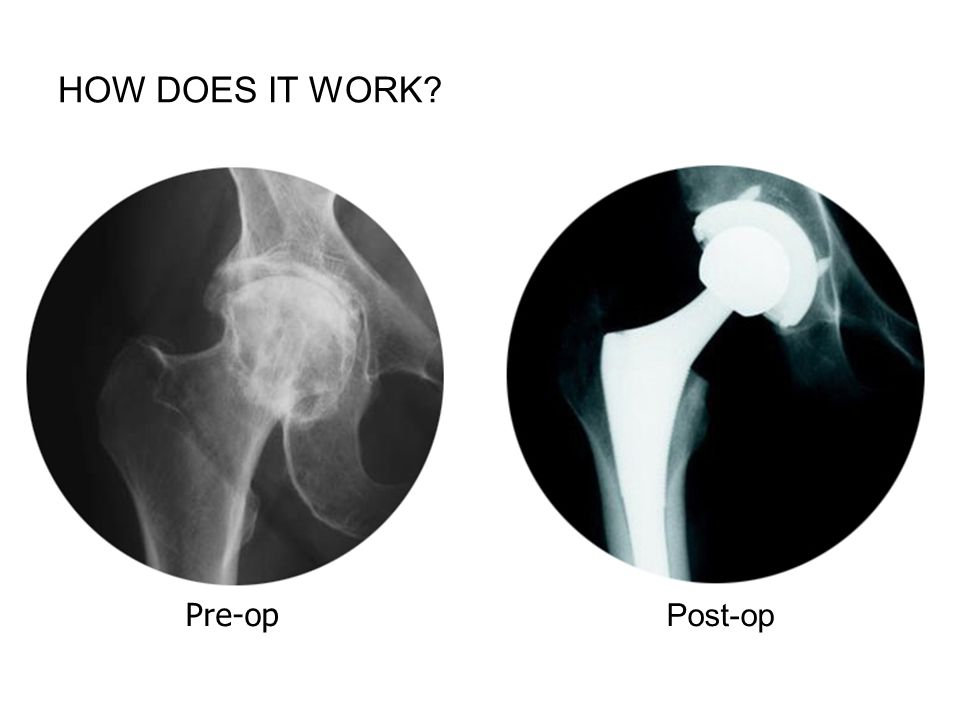 How does it work FPO iStockPhoto $ Pre-op Post-op