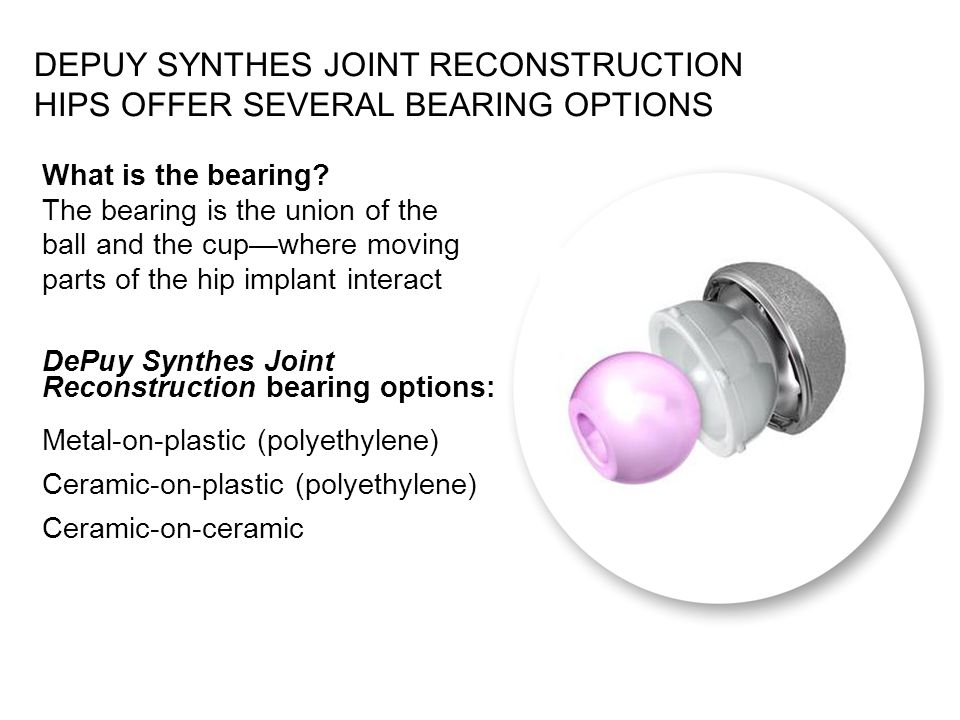 DEPUY SYNTHES JOINT RECONSTRUCTION HIPS OFFER SEVERAL BEARING OPTIONS