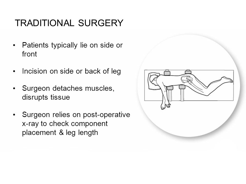Traditional surgery Patients typically lie on side or front