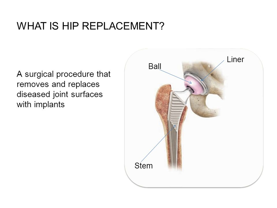 What is hip replacement