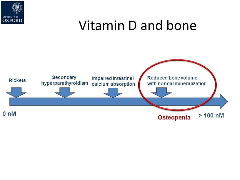 Vitamin D and bone 0 nM > 100 nM Osteopenia Secondary