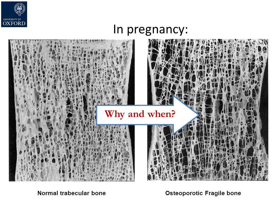 In pregnancy: Why and when Normal trabecular bone