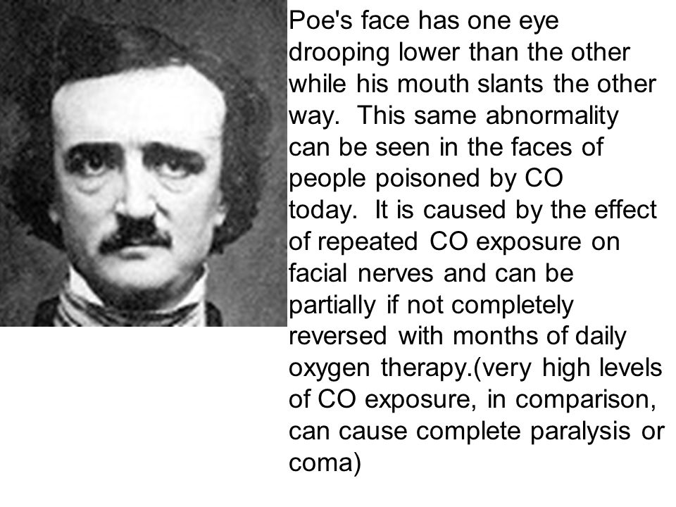 Poe s face has one eye drooping lower than the other while his mouth slants the other way.