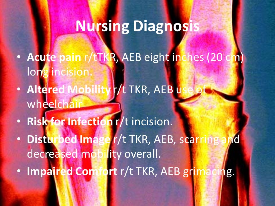 Nursing Diagnosis Acute pain r/tTKR, AEB eight inches (20 cm) long incision. Altered Mobility r/t TKR, AEB use of wheelchair.