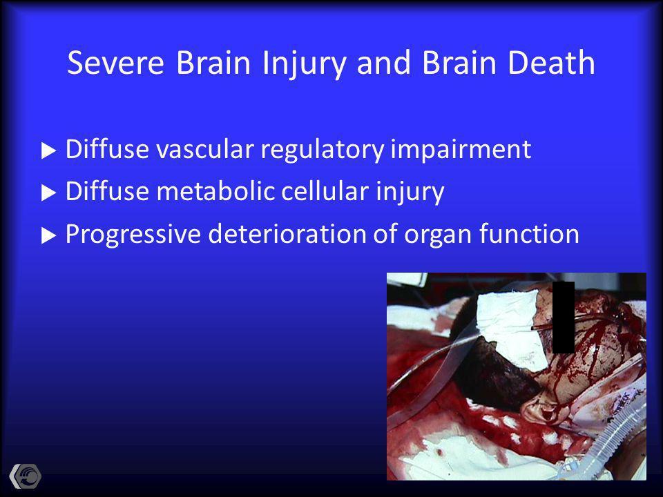 Severe Brain Injury and Brain Death