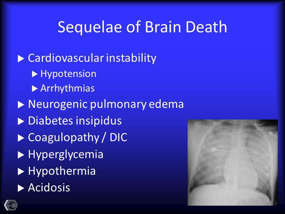 Sequelae of Brain Death