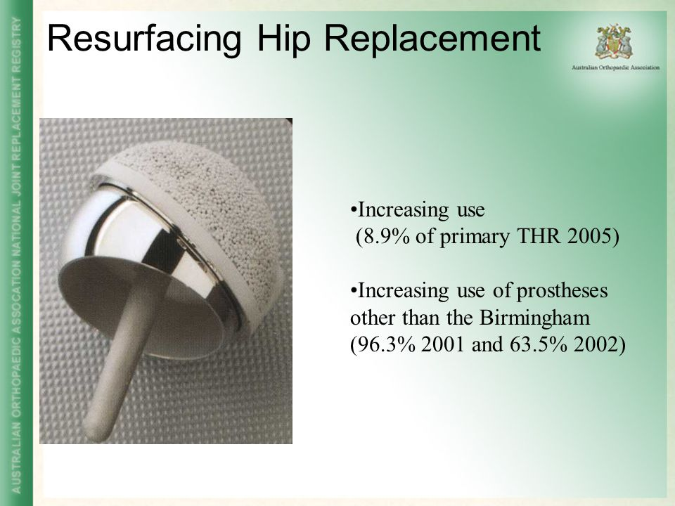 Resurfacing Hip Replacement