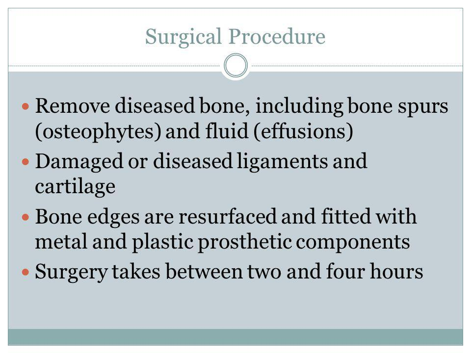 Surgical Procedure Remove diseased bone, including bone spurs (osteophytes) and fluid (effusions) Damaged or diseased ligaments and cartilage.