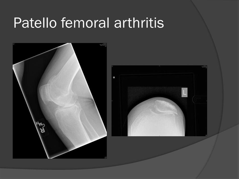 Patello femoral arthritis
