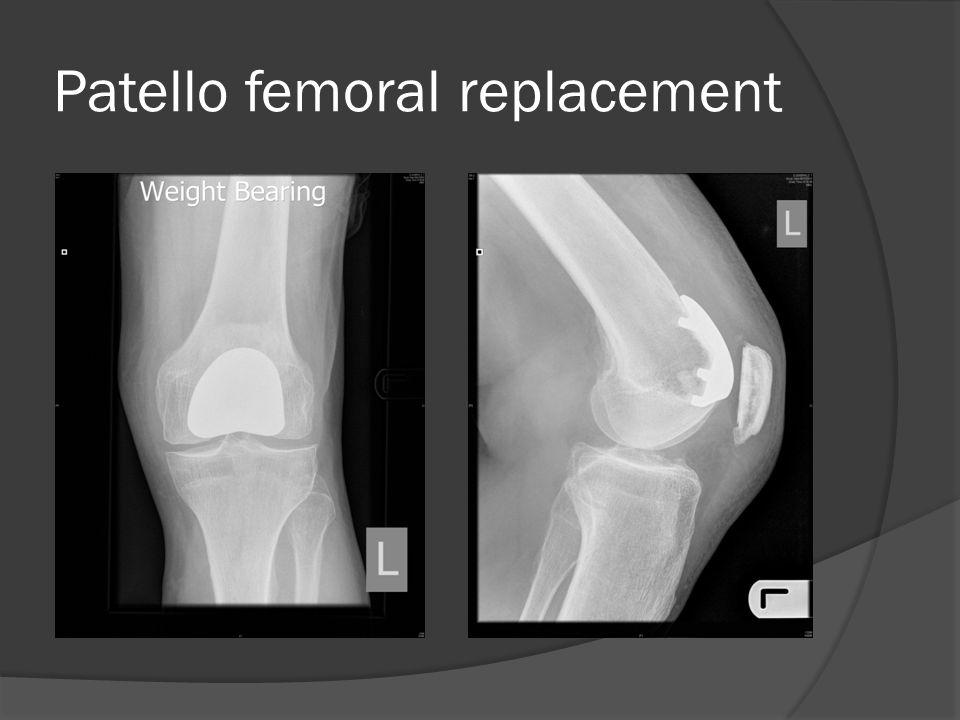 Patello femoral replacement