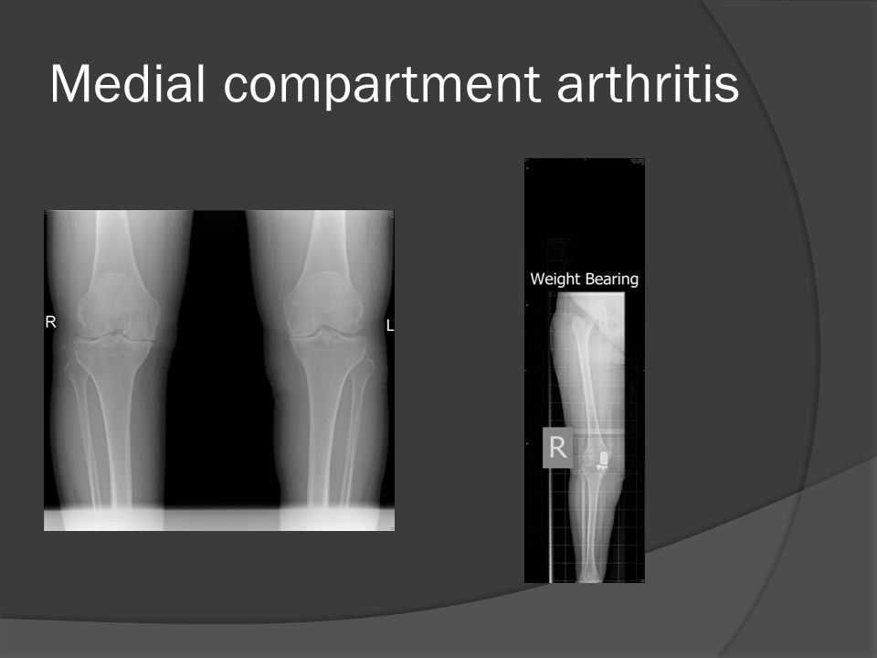 Medial compartment arthritis