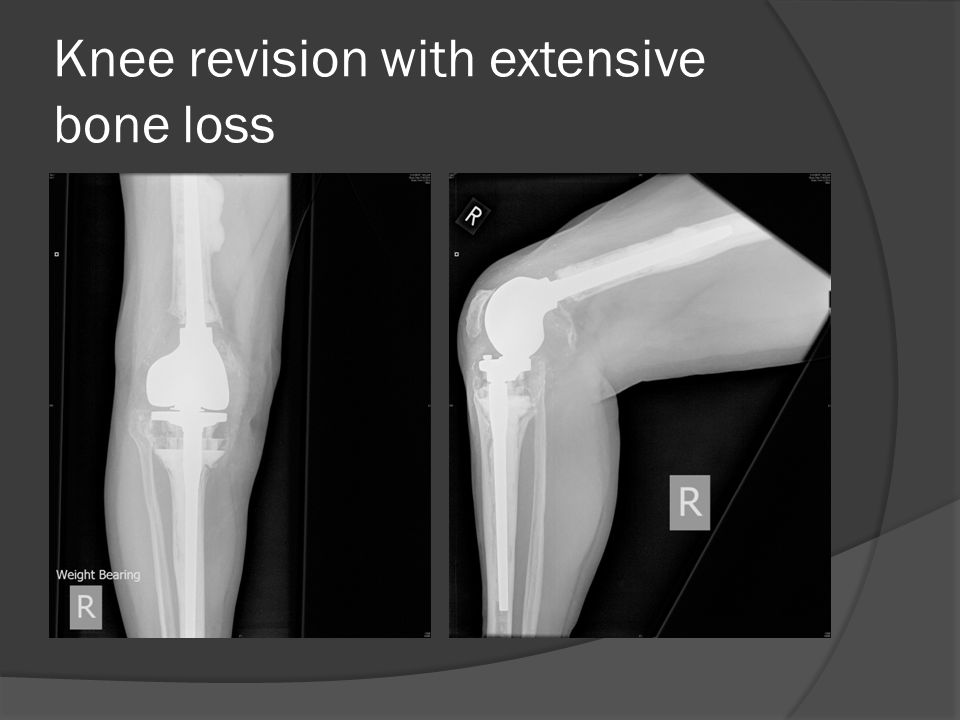 Knee revision with extensive bone loss