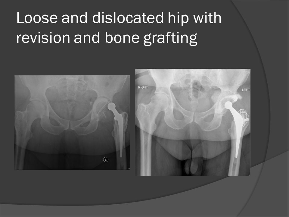 Loose and dislocated hip with revision and bone grafting