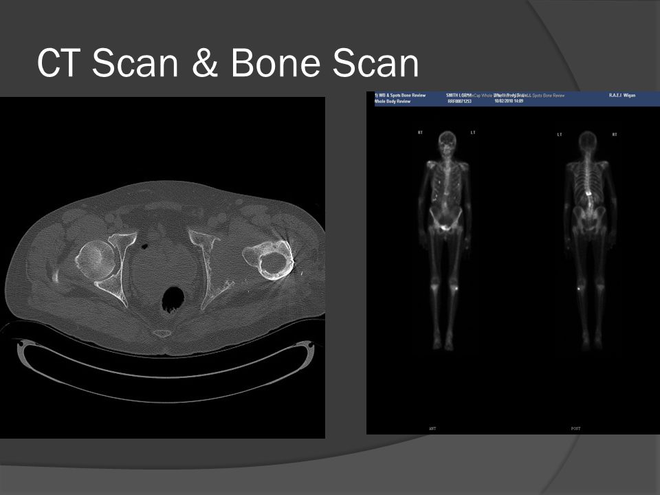 CT Scan & Bone Scan