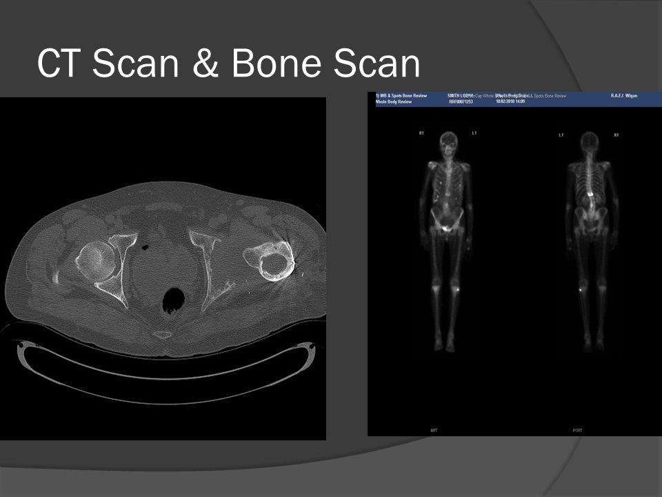 CT Scan & Bone Scan
