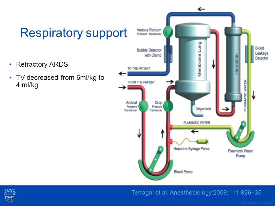 Respiratory support Refractory ARDS
