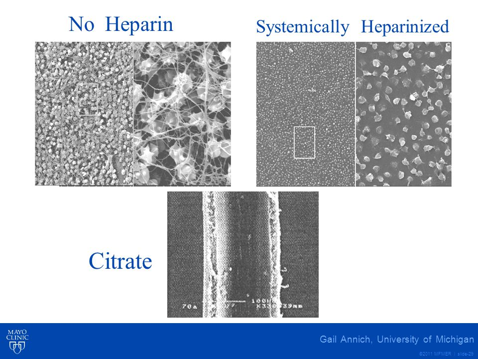 Citrate No Heparin Systemically Heparinized