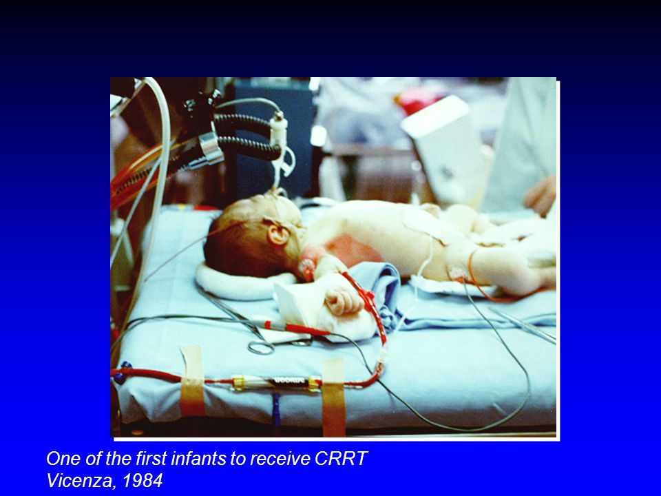 One of the first infants to receive CRRT