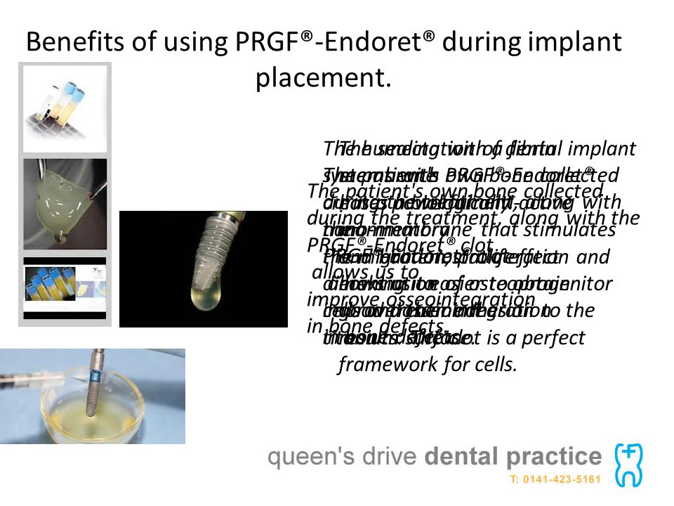 Benefits of using PRGF®-Endoret® during implant placement.