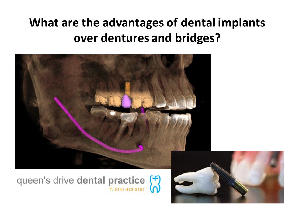 What are the advantages of dental implants over dentures and bridges