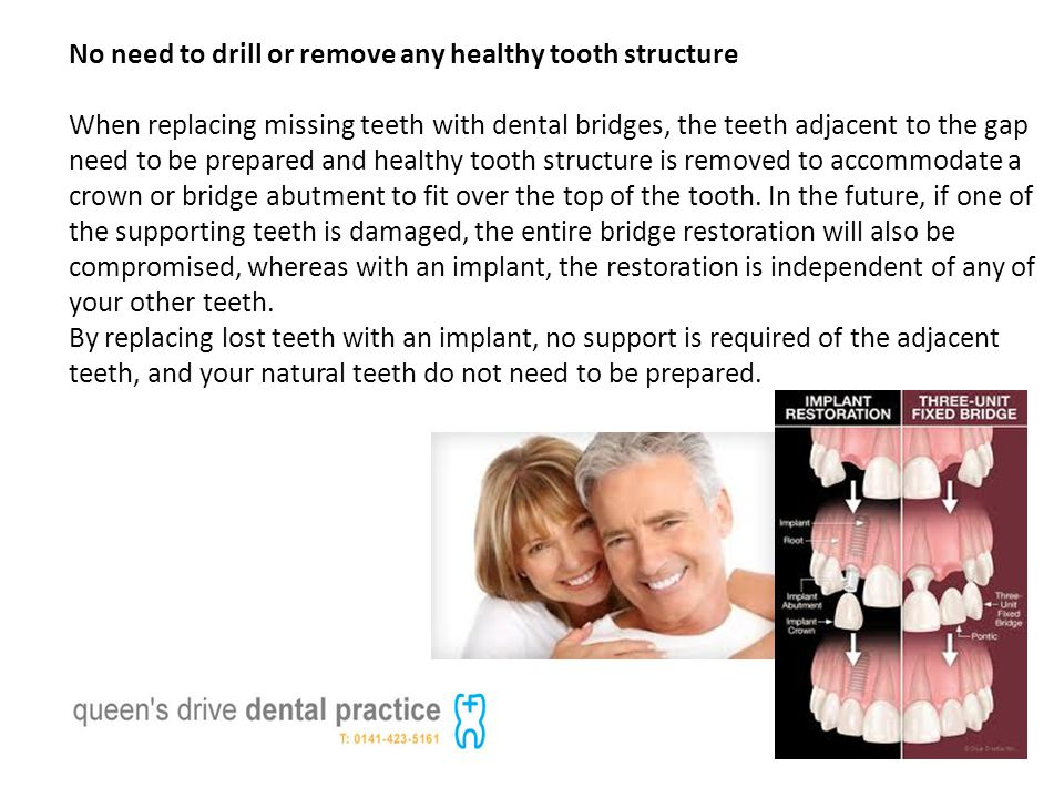 No need to drill or remove any healthy tooth structure