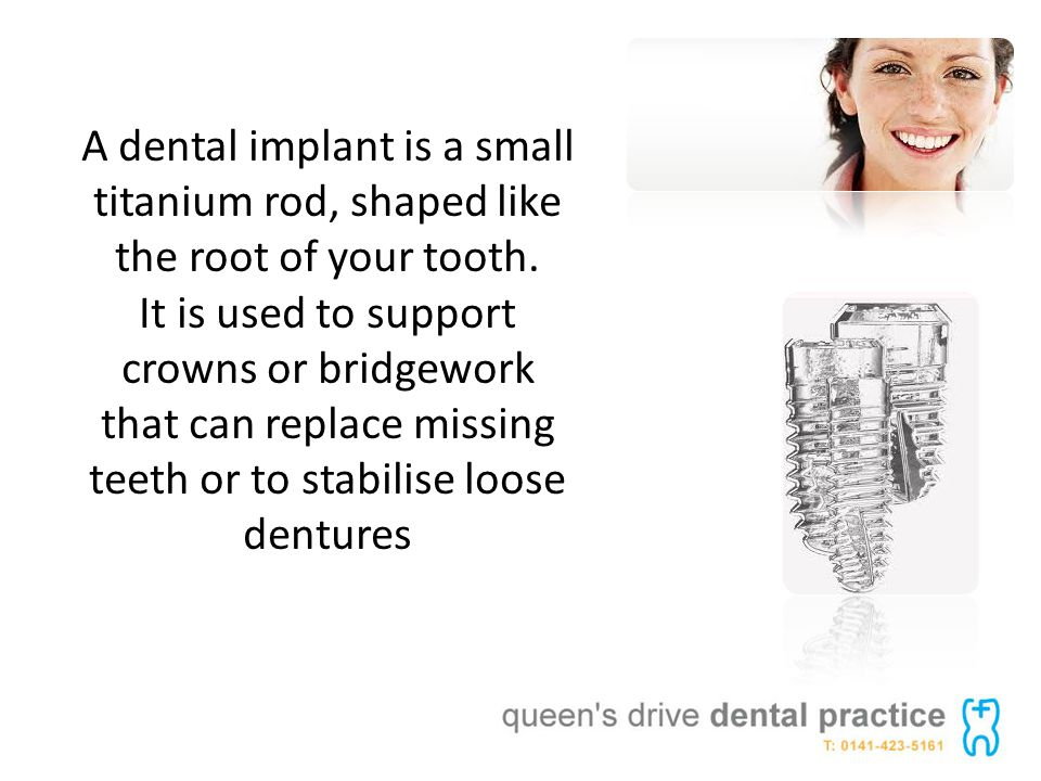 A dental implant is a small titanium rod, shaped like the root of your tooth.