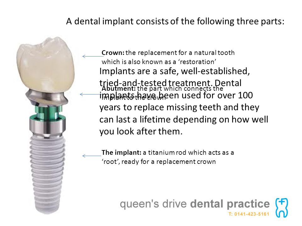 A dental implant consists of the following three parts: