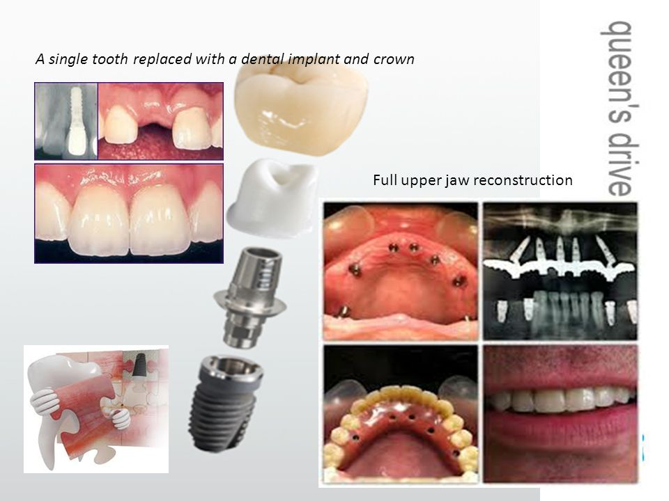 A single tooth replaced with a dental implant and crown