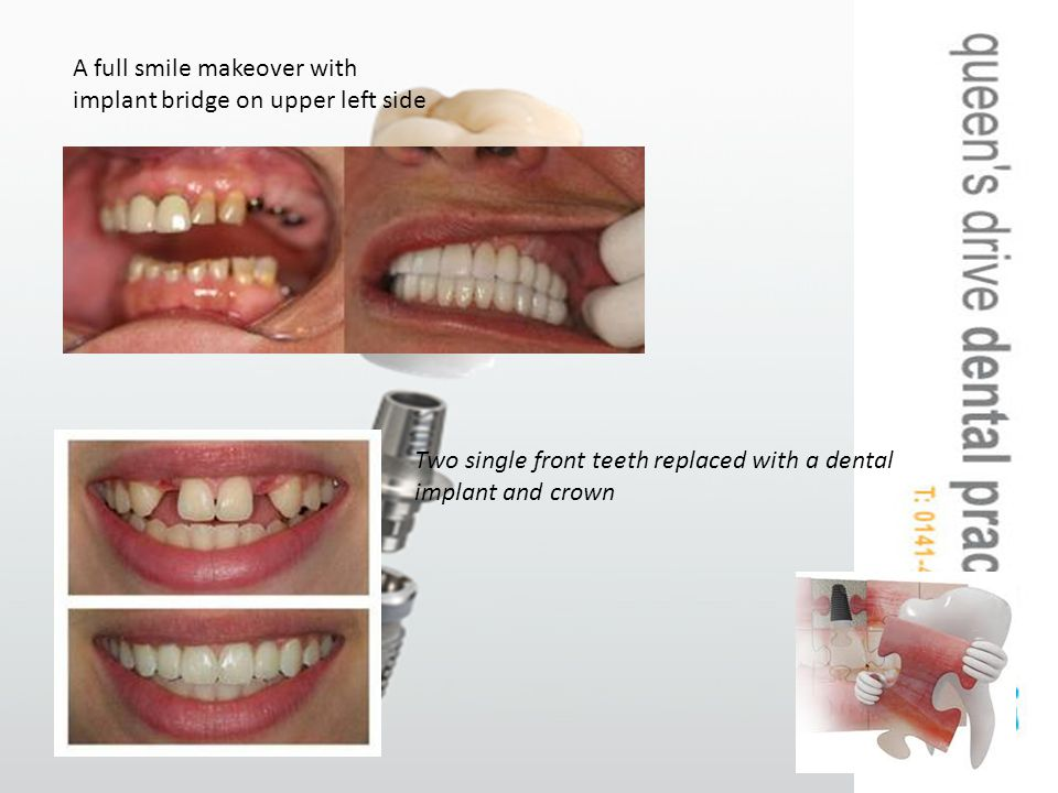 A full smile makeover with implant bridge on upper left side