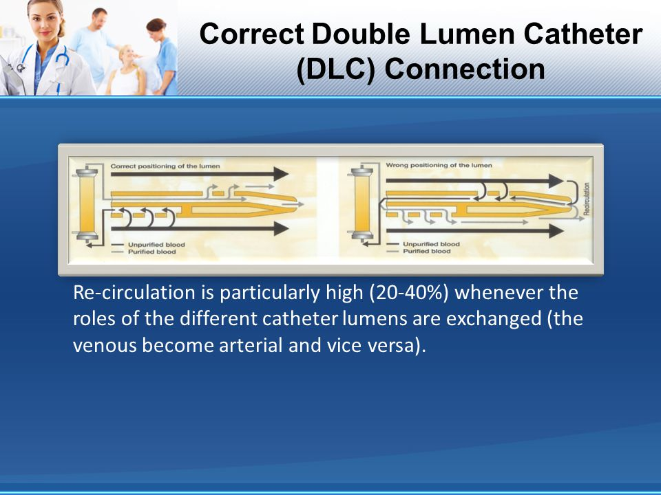 Correct Double Lumen Catheter (DLC) Connection