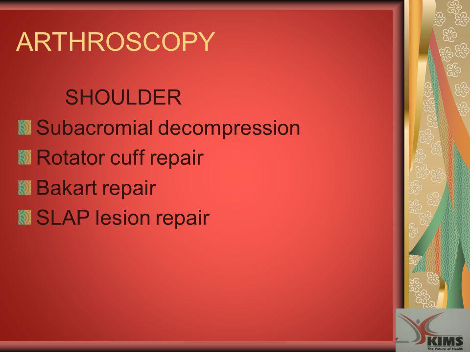 ARTHROSCOPY SHOULDER Subacromial decompression Rotator cuff repair