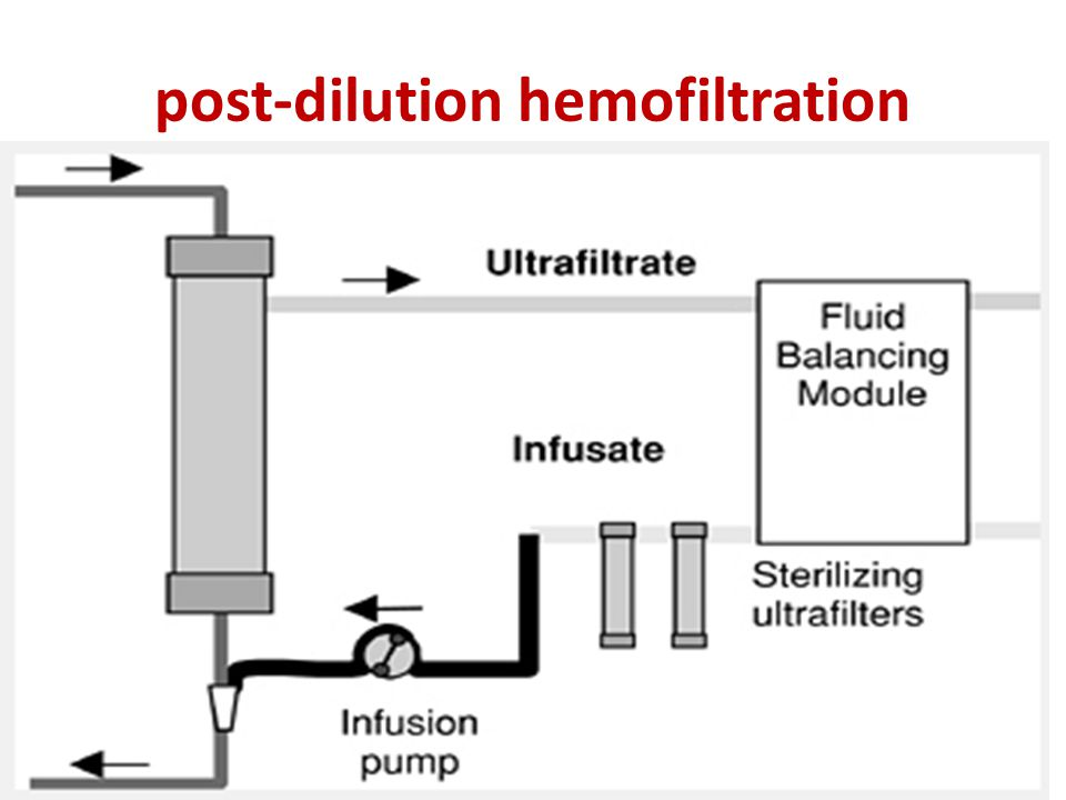 post-dilution hemofiltration