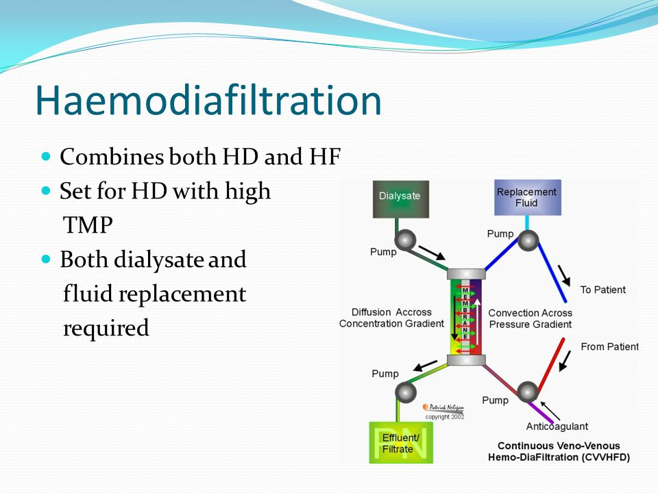 Haemodiafiltration Combines both HD and HF Set for HD with high TMP