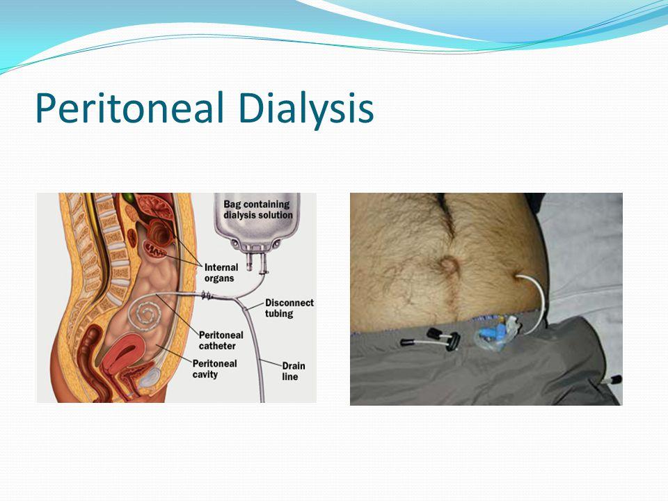 Peritoneal Dialysis