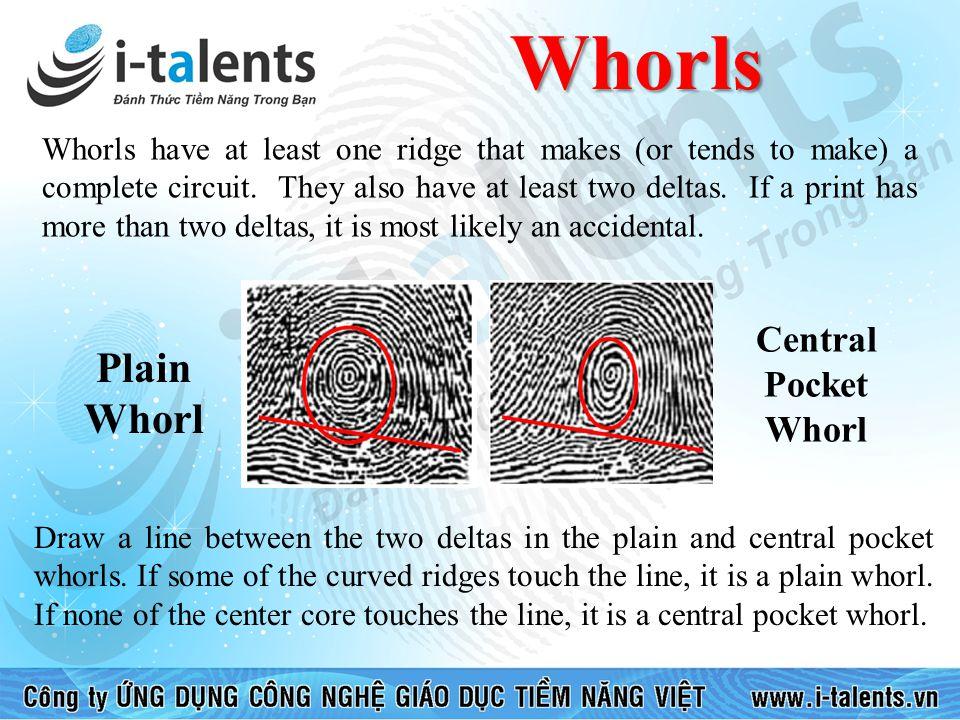 Whorls Plain Whorl Central Pocket Whorl