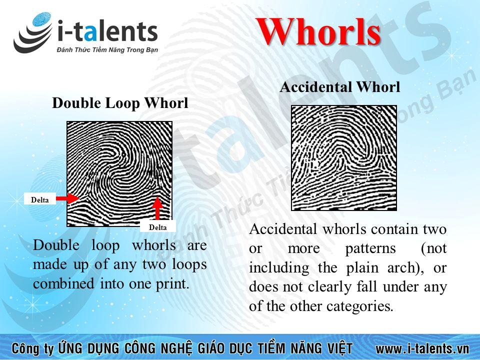 Whorls Accidental Whorl Double Loop Whorl