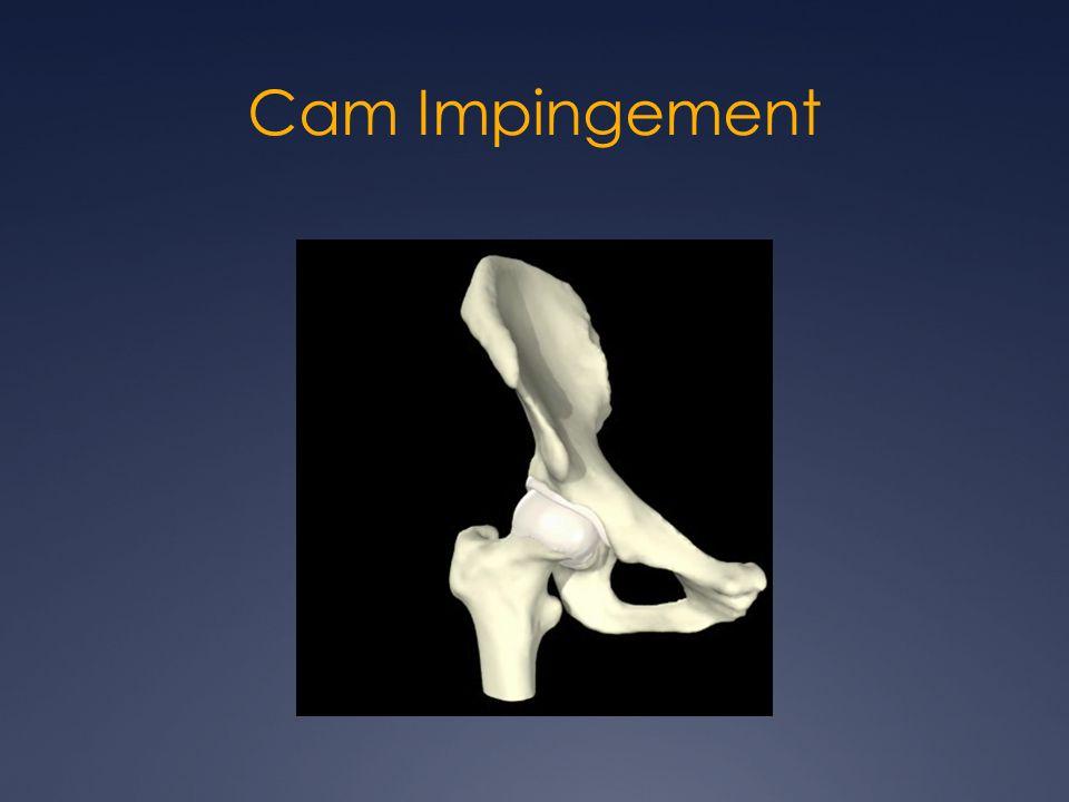 Cam Impingement