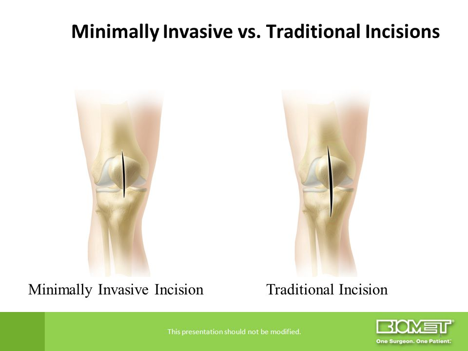 Minimally Invasive vs. Traditional Incisions