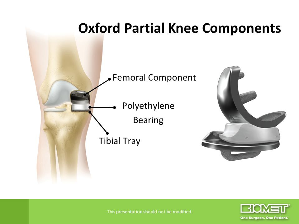 Oxford Partial Knee Components