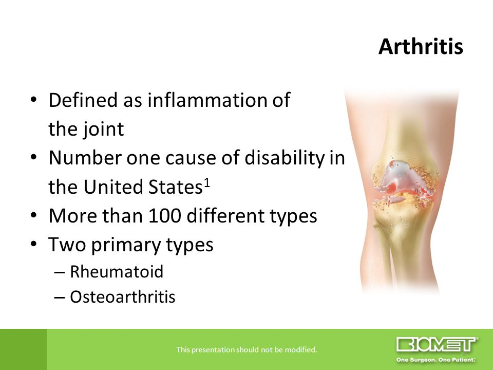 Arthritis Defined as inflammation of the joint