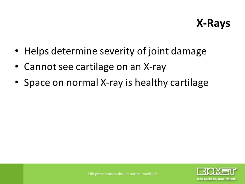X-Rays Helps determine severity of joint damage