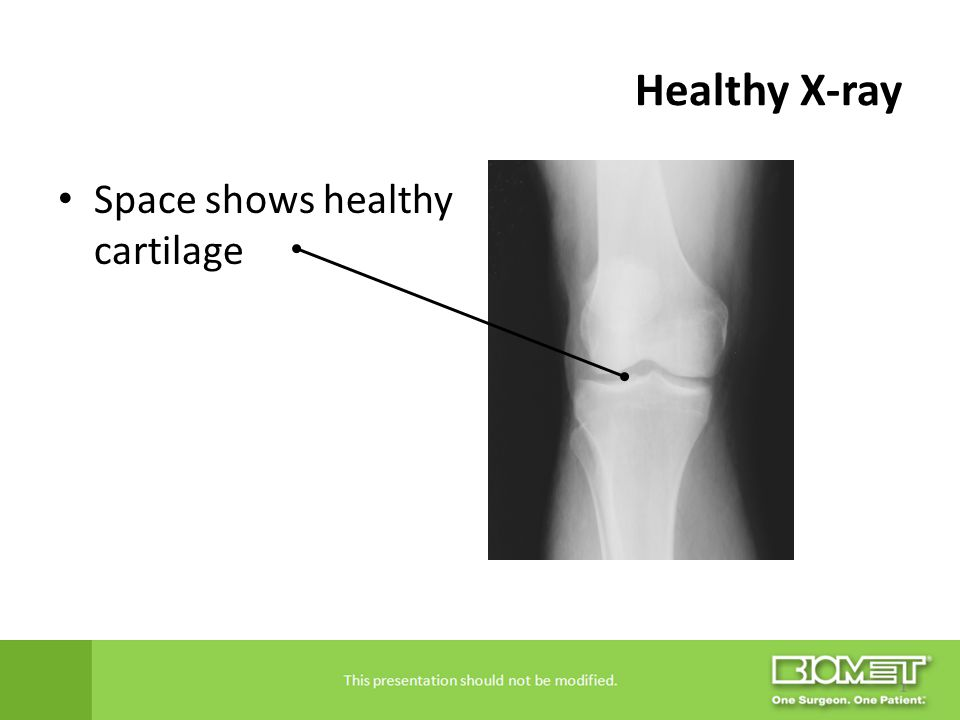 Healthy X-ray Space shows healthy cartilage
