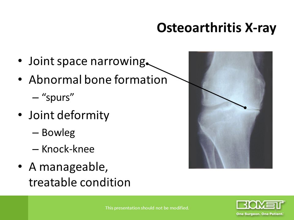 Osteoarthritis X-ray Joint space narrowing Abnormal bone formation