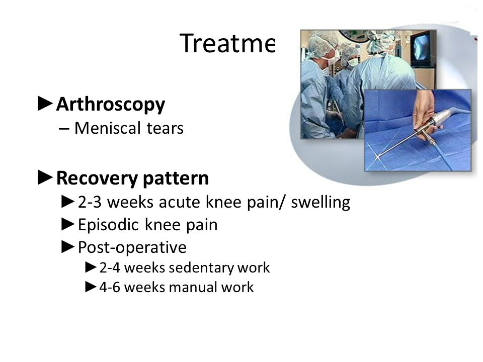 Treatment Arthroscopy Recovery pattern Meniscal tears