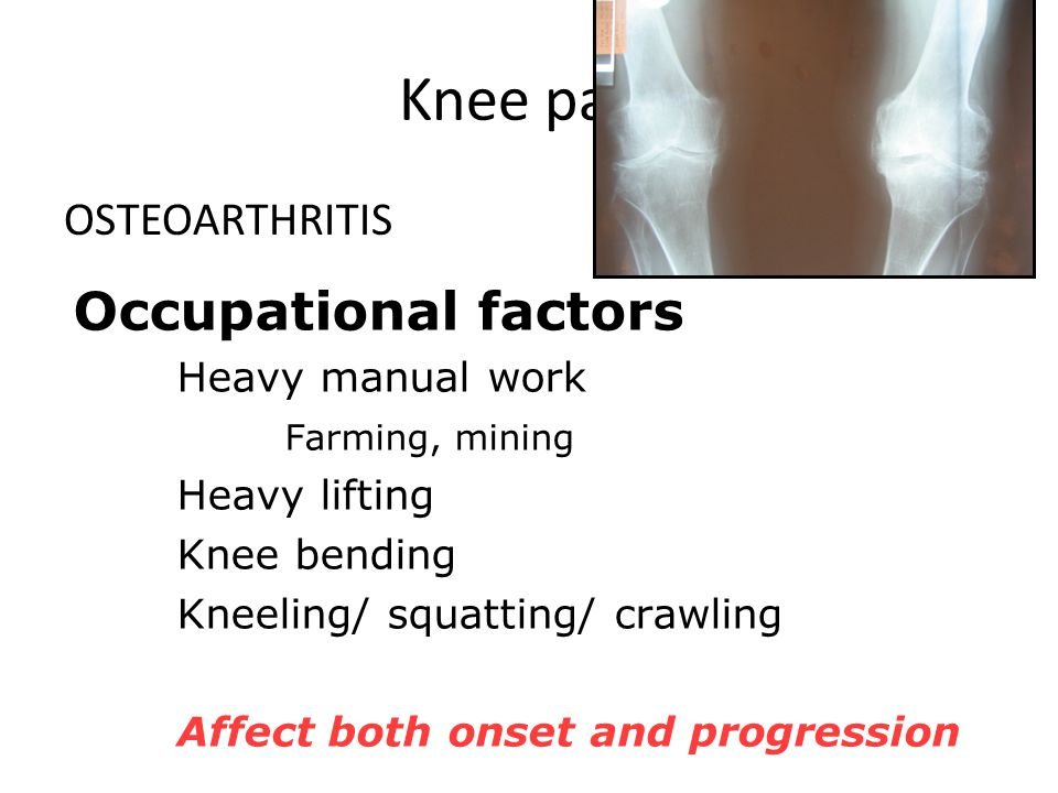 Knee pain Occupational factors OSTEOARTHRITIS Heavy manual work