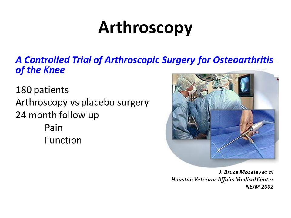 Arthroscopy A Controlled Trial of Arthroscopic Surgery for Osteoarthritis of the Knee. 180 patients.