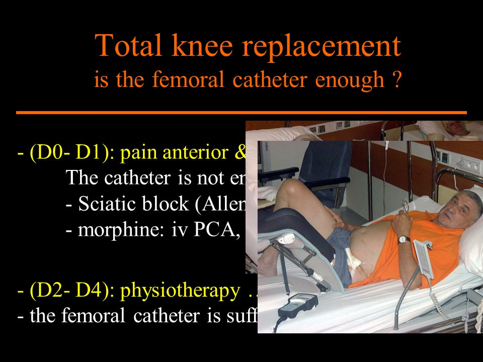 Total knee replacement is the femoral catheter enough