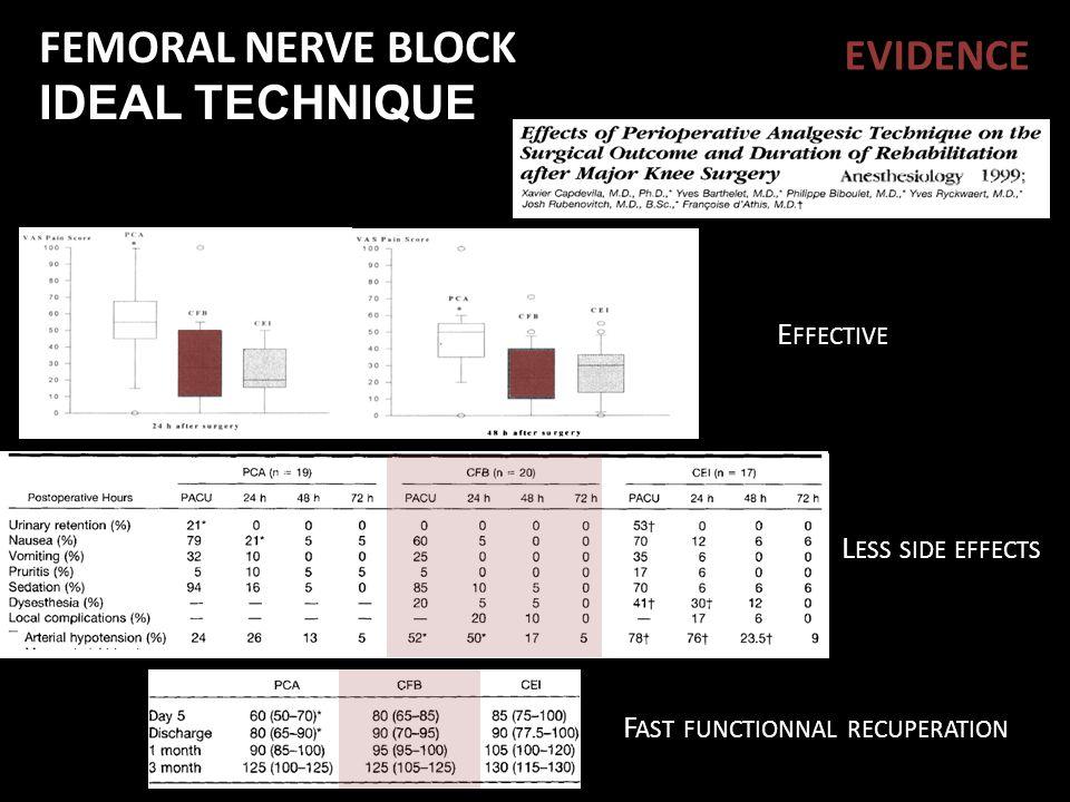 FEMORAL NERVE BLOCK IDEAL TECHNIQUE